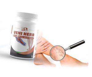 Разширени вени на краката (варикозни вени): Симптоми, стадии, венозни рани – Д-р Денислав Кехайов